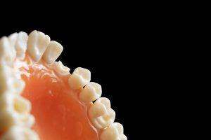 dentist, dentistry, orthodontics